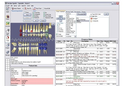 screenshot-Open Dental-1