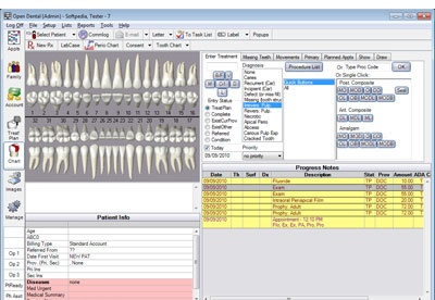 screenshot-Open Dental-2